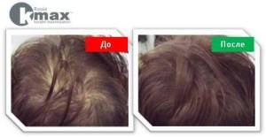 кератиновый загуститель волос_4