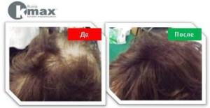 кератиновый загуститель волос_5