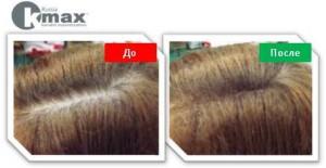кератиновый загуститель волос_6