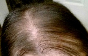 редкие волосы у женщин