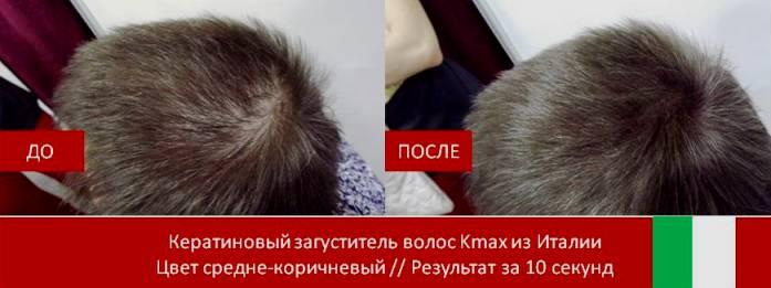 Кератиновый загуститель волос Kmax из Италии
