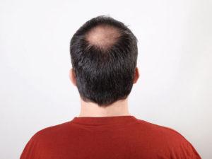 Какую причёску или стрижку сделать чтобы скрыть залысину