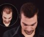 Кератиновый стайлинг редких волос Kmax подходит для мужчин
