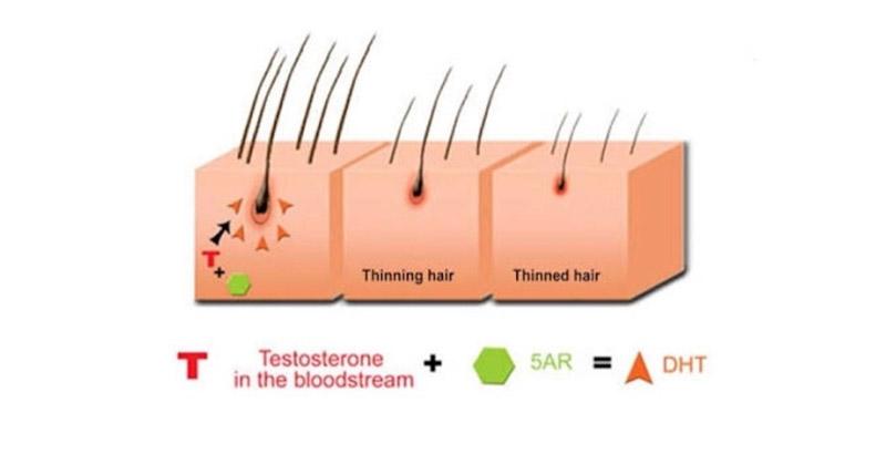 Пищевые добавки для волос анти ДГТ_www.kmaxrus.ru_4