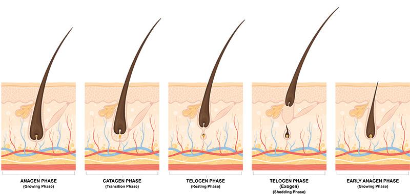 Эффлувиум-причины-и-способы-восстановления-роста-волос_4