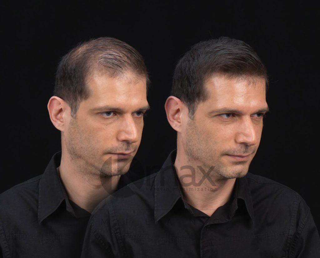 Мужчина с редкими волосами и загуститель волос _ до и после