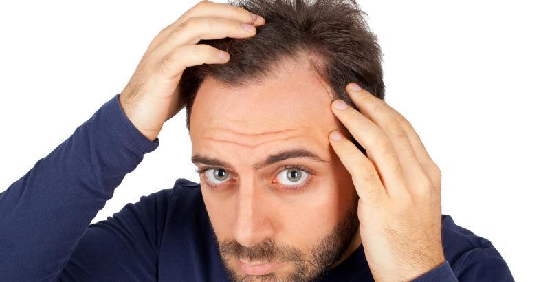 езонное выпадение волос у мужчины