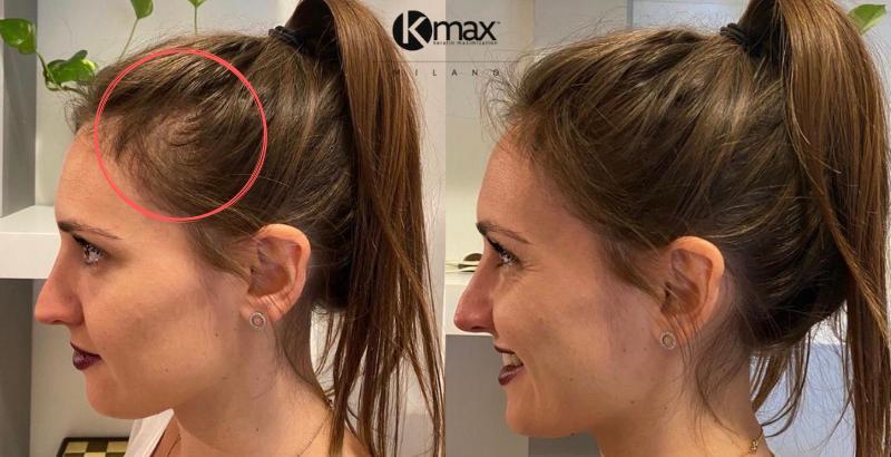 Решение для тонких волос против залысин для женщин_3